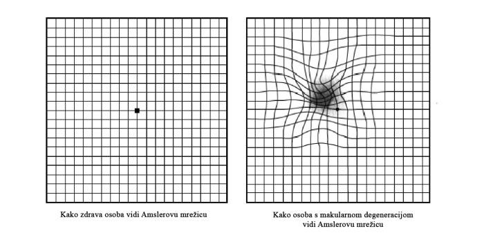 slika - amsler test
