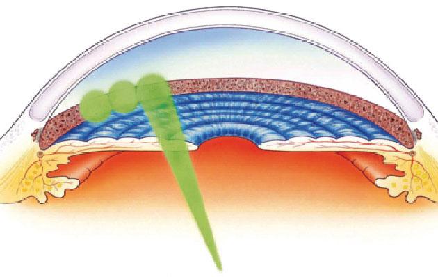 Liječenje glaukoma SLT laserom