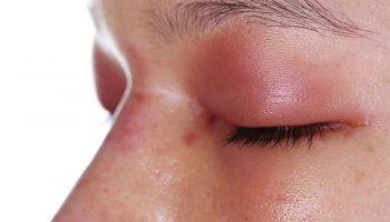 Kako tretirati očne alergije
