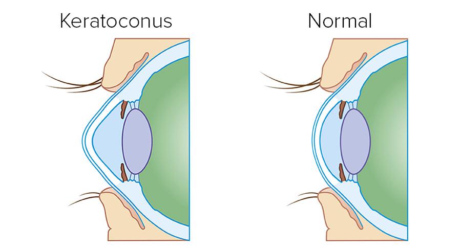 Liječenje keratokonusa – Cross linking