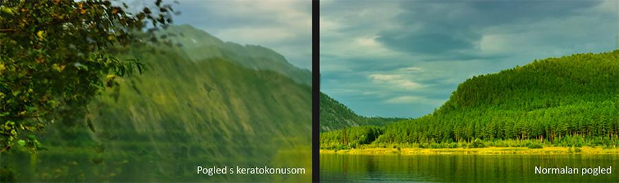 kandidati za liječenje keratokonusa