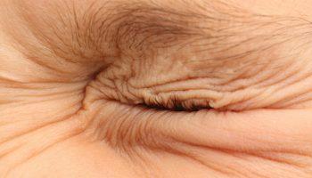 Blefarospazam ili nekontrolirano treptanje