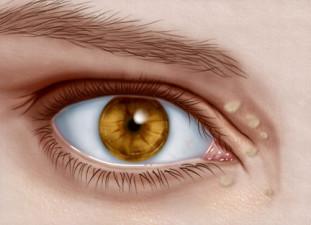 Ksantelazme su nakupine lipida (masnoća) koje se nakupljaju u površinskom dijelu kože