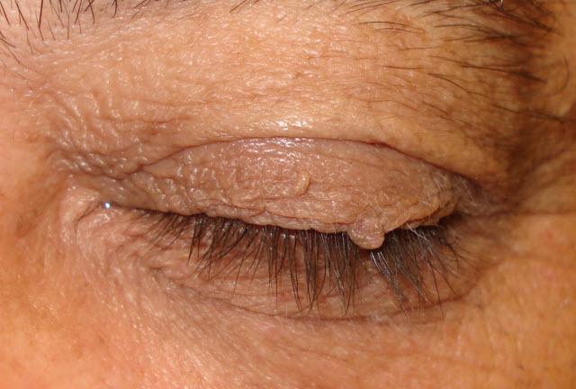 bradavice na vjeđama i oko očiju