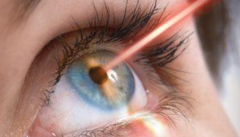 laser u oko