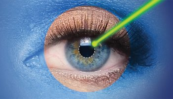 5 facts about laser diopter and astigmatism removal