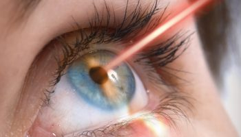 what laser eye surgery is really like