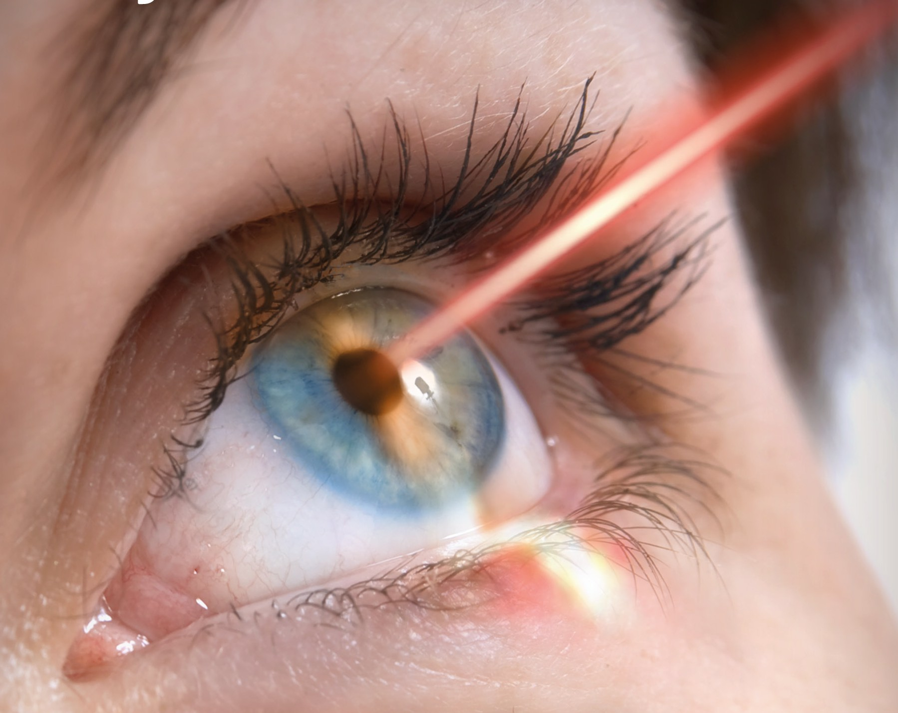 We Reveal To You What Laser Eye Surgery Is Really Like