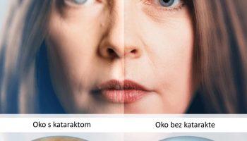 Operacija katarakte za dobar vid bez obzira na godine