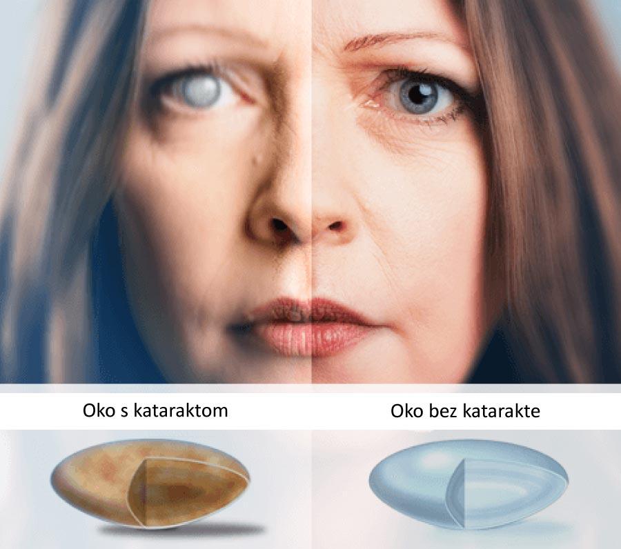 koji su simptomi katarakte