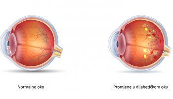 80% osoba koje imaju dijabetes boluju i od dijabetičke retinopatije