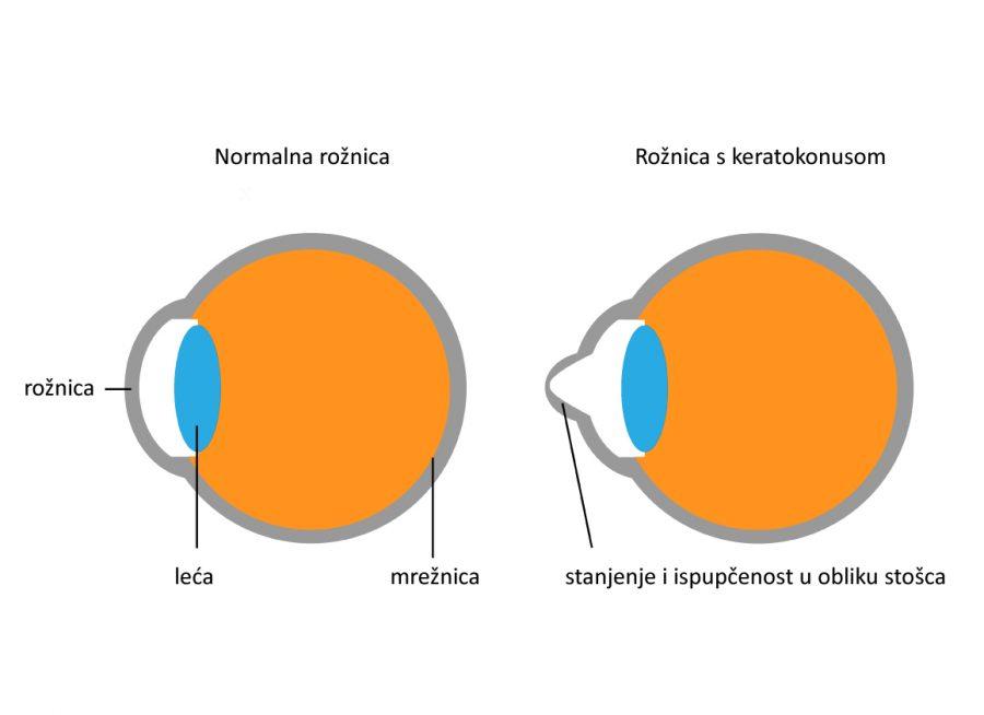 normalna roznica vs. roznica s keratokonusom