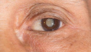 odstranitev motne očesne leče