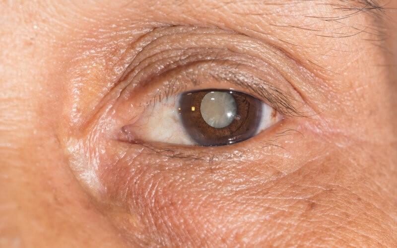 pojave sive mrene ili katarakte